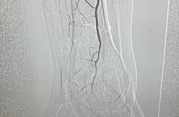 Qué papel tiene el Cirujano vascular en el pie diabético