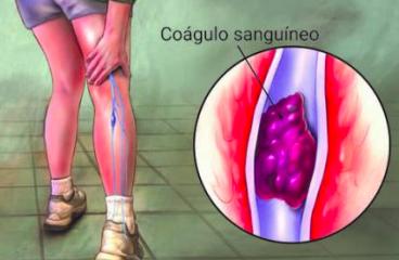 Trombosis venosa profunda (TVP): por qué se produce y qué riesgos presenta