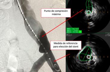 Qué nos aporta el IVUS (ecografía intravascular) en el diagnóstico y tratamiento del Síndrome de May-Thurner
