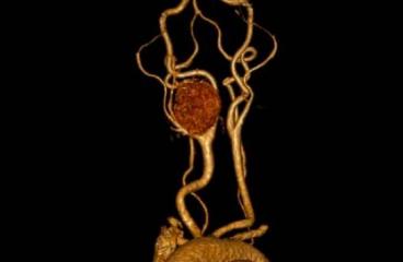 Paraganglioma: qué es este tumor vascular y cuál es su tratamiento