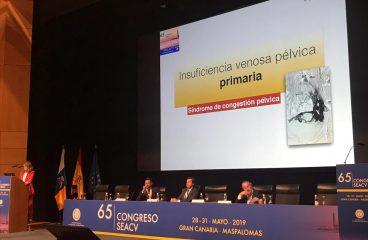 La Dra. Robles Martín participa en el 65 Congreso de la Sociedad Española de Angiología y Cirugía Vascular